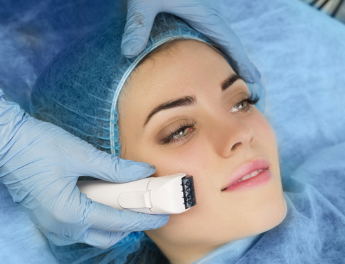 PRP Injections With Chemical Peel